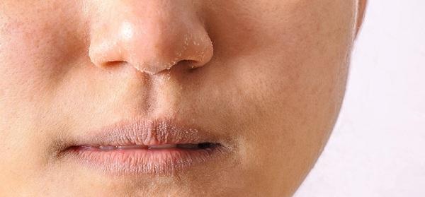 đặc điểm da khô